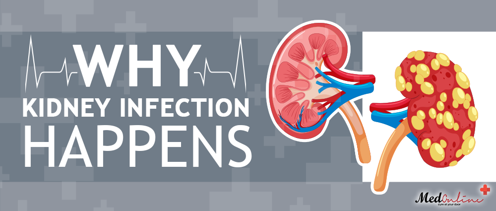 Kidney-Infection