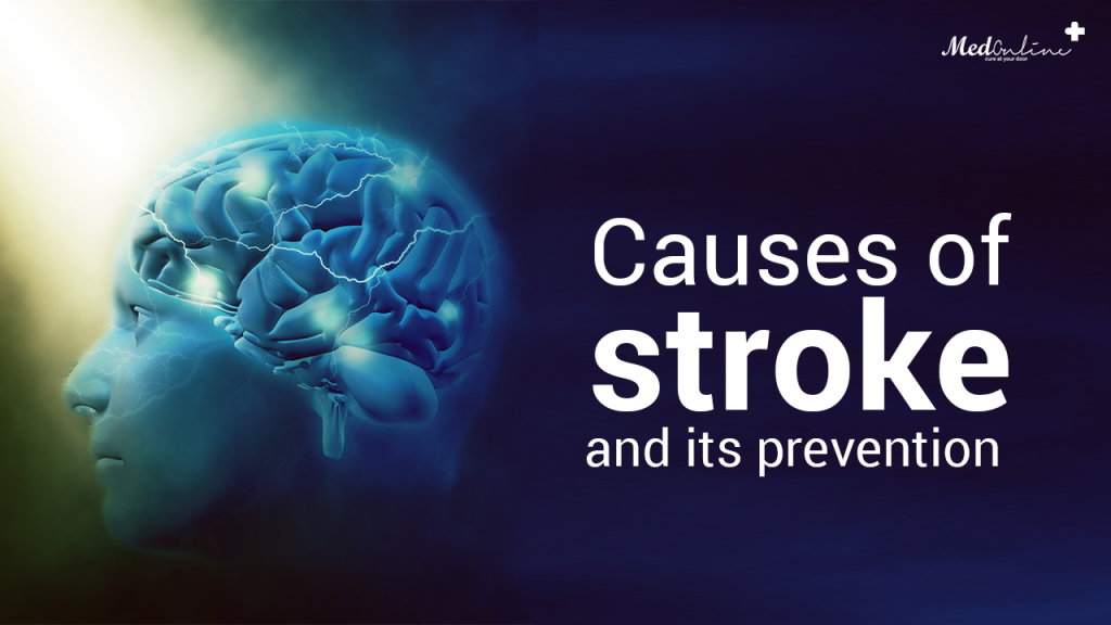 Causes-of-stroke-and-its-prevention