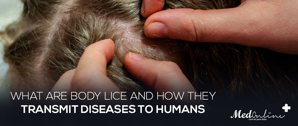 What are body lice