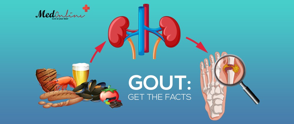 what-are-the-causes-treatment-and-symptoms-of-gout