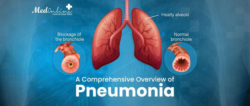 a-comprehensive-overview-of-pneumonia
